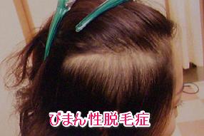 女性の薄毛、びまん性脱毛症