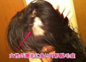 女性の薄毛、円形脱毛症