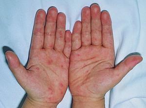 手足口病で水疱ができた手のひら