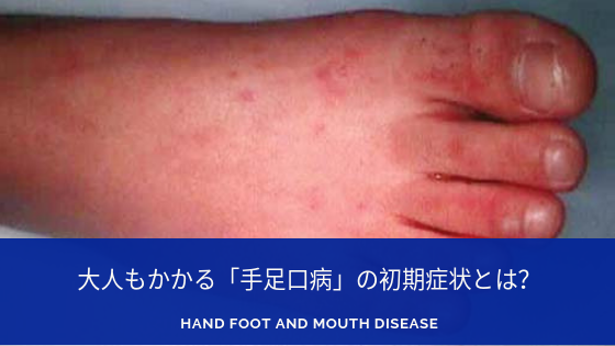 手足口病に関する記事のアイキャッチ