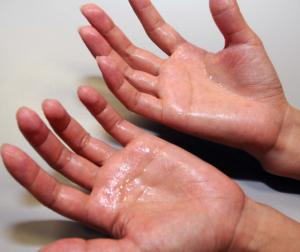 手汗対策や無くす方法