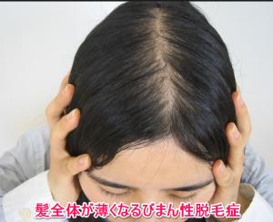 女性のびまん性脱毛症