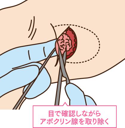 アポクリン腺の手術方法