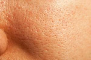 Facial Skin Closeup