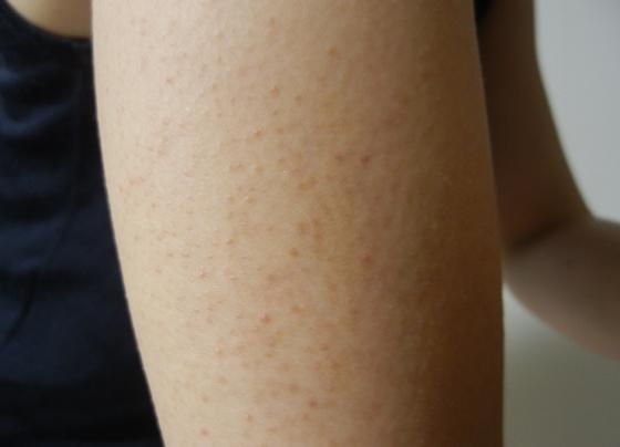 腕のブツブツ毛孔性苔癬(もうこうせいたいせん)とは