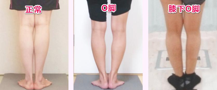 正常の脚とO脚と膝下O脚