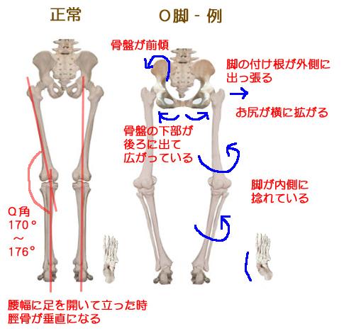 o脚の原因は骨盤にある